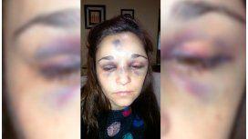 Carla Pereyra fue brutalmente golpeada por su novio