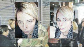 Dora Tula fue agredida por el dueño de la peluquería en la que trabajaba