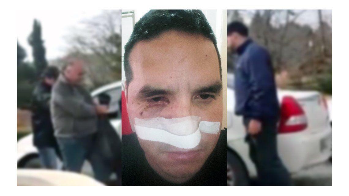 El policía herido tras el operativo en la casa de Jorge Castillo
