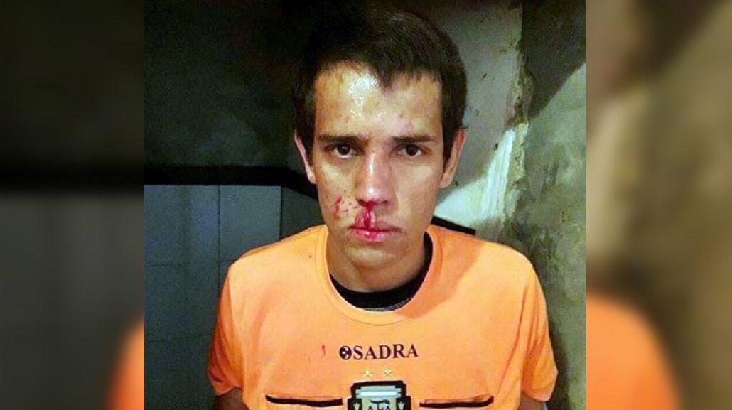 VIDEO: Un futbolista se enojó con el árbitro y le rompió la cara con un cabezazo