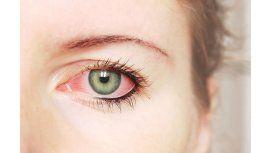 Claves para prevenir la alergia ocular