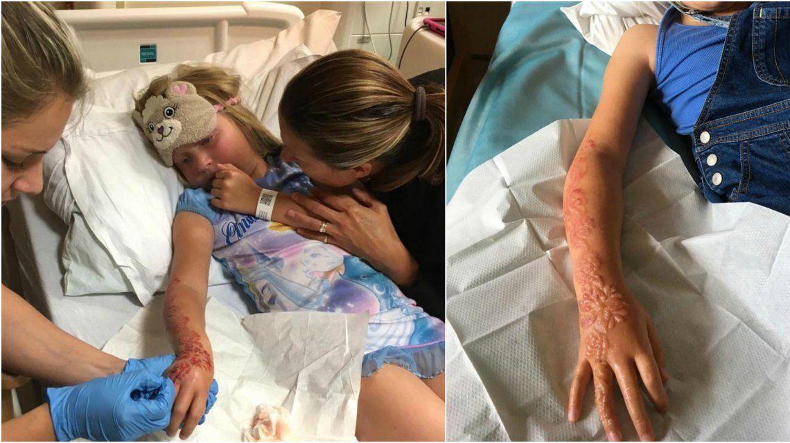 Madison Gulliver y una marca de por vida por el tatuaje de henna