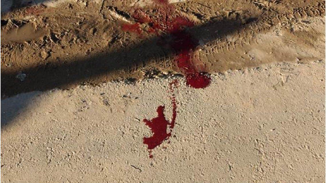 Discutieron y lo golpeó con una pala en la cabeza: quedó inconsciente