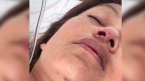 una mujer se tiro de un segundo piso para evitar que su pareja la mate