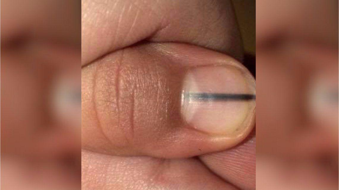 Fue a hacerse la manicura y le detectaron un melanoma