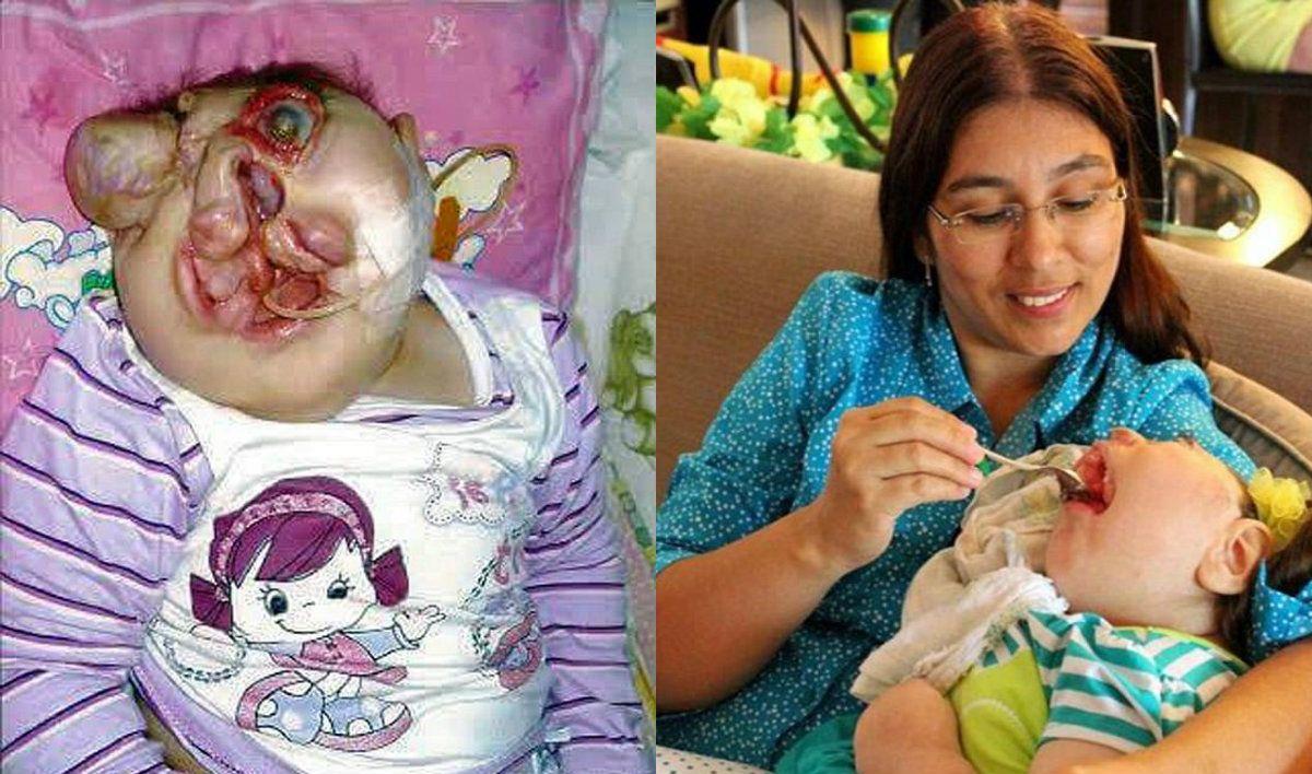 Vitória pasó por ocho operaciones para darle un rostro