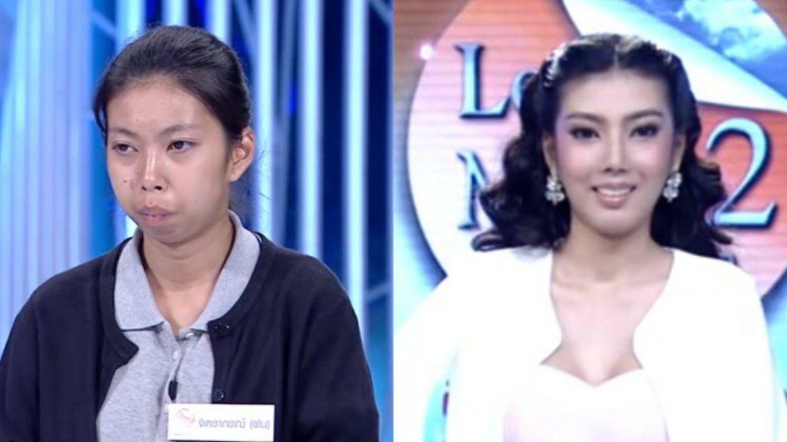 El antes y después de la joven es notable