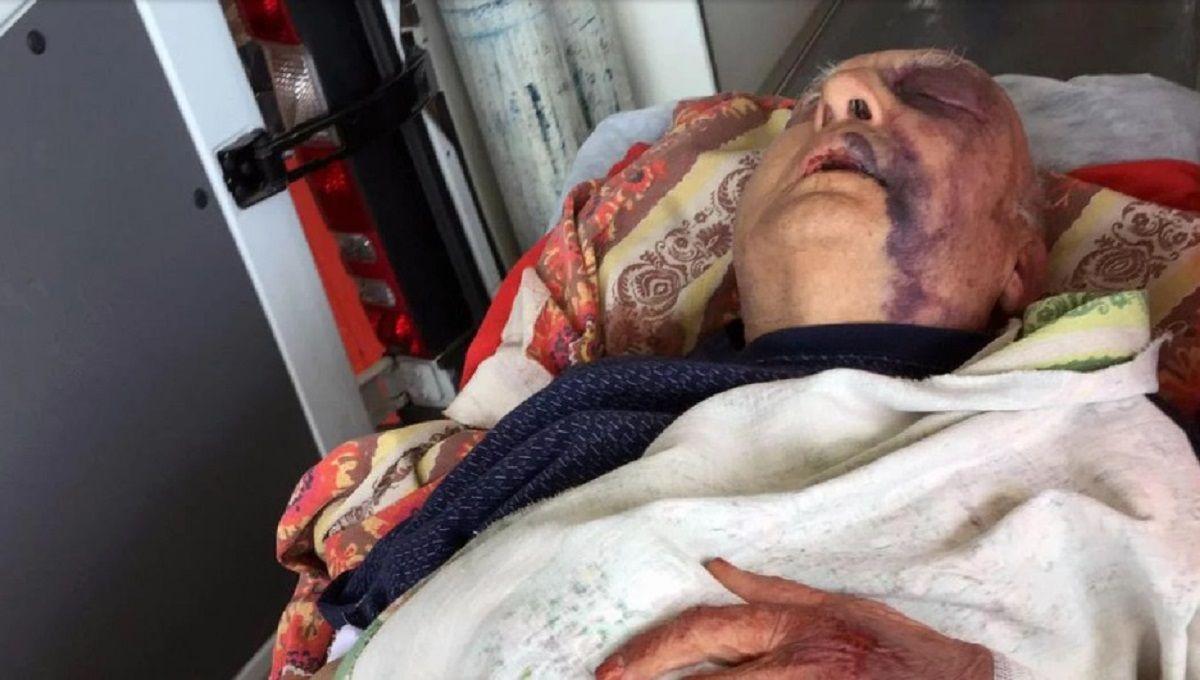 Golpearon, ataron y robaron a un jubilado de 92 años en Merlo