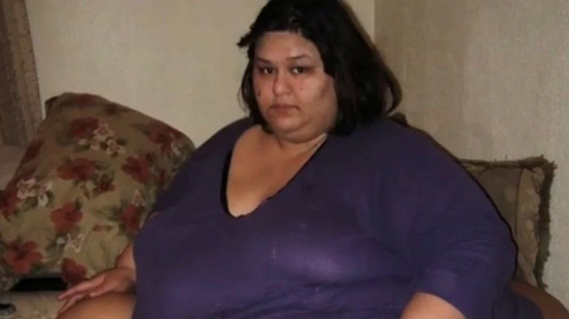 ¡Impresionante! El antes y después de la mujer más gorda del mundo