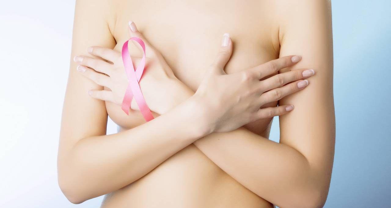 El novedoso test que evita la quimioterapia en pacientes con cáncer de mama