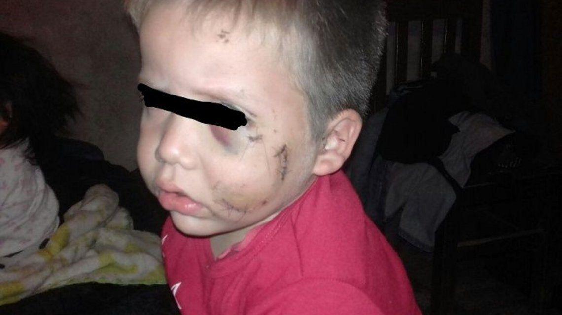 Entró a la casa del vecino a buscar la pelota y el perro le destrozó la cara