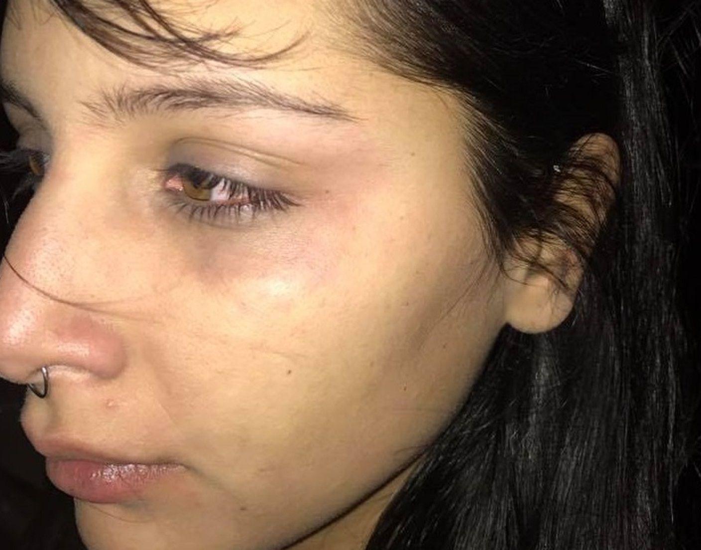 Patovicas golpearon a una chica y su novio a la salida de un boliche de la Costanera