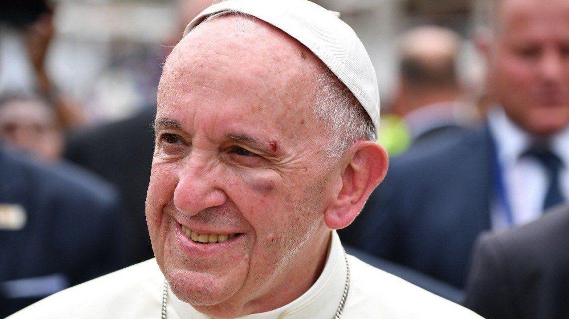 Francisco se golpeó saliendo del Papamóvil