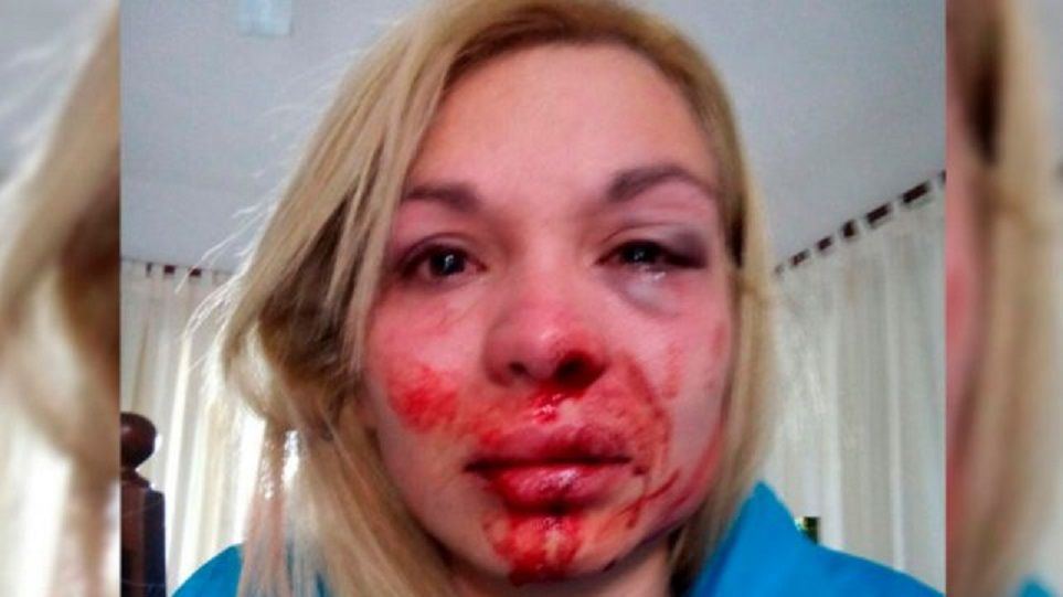 Otro caso de violencia de género: discutió con su pareja y la desfiguró
