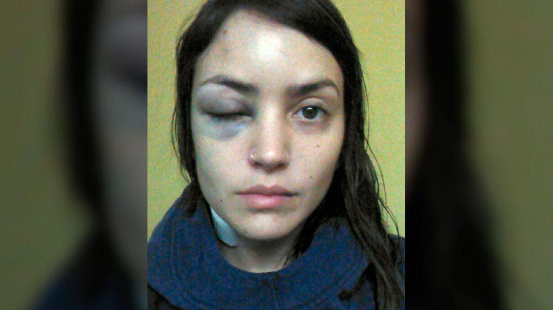 Una joven denunció que un hombre le dio una brutal golpiza en pleno centro porteño