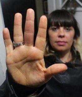 Magalí Lozada, la mujer picada por una araña