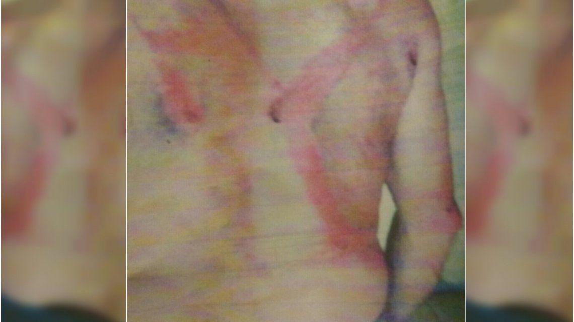 Conmoción en Uruguay: denunció que fue golpeado por pedir horas extras