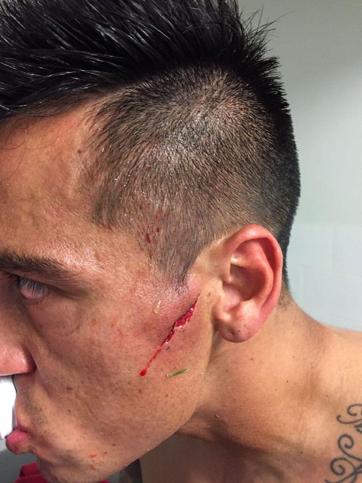 Luciano Fabián Monzón con el fuerte corte en su rostro