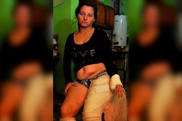 Yesica Castillo sufrió quemaduras por su ex pareja