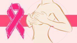 Trivia: ¿cuánto sabés sobre el cáncer de mama?