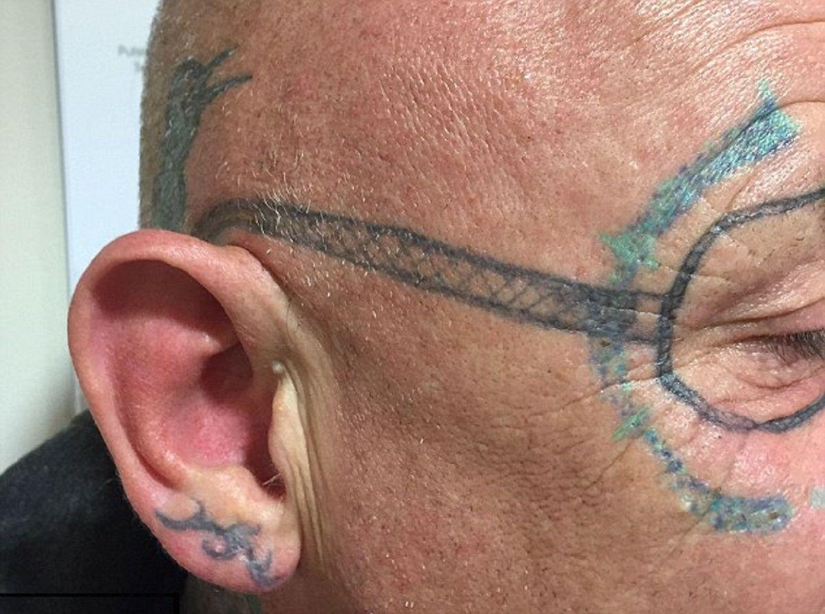 ¿La peor resaca del mundo?: se fue de fiesta y despertó con un horrendo tatuaje en la cara