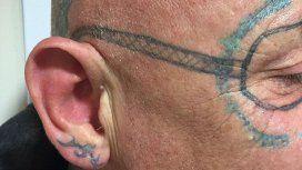 ¿La peor resaca? Se fue de fiesta y despertó con un horrendo tatuaje en la cara