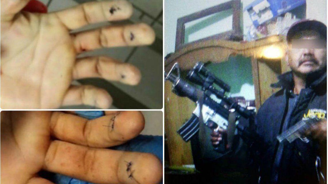 México: acribillaron a un líder mafioso mientras se operaba para cambiar su identidad