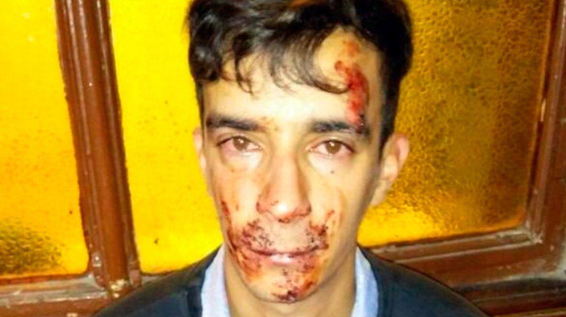 Brutal ataque de una patota de adolescentes a un electricista en La Plata