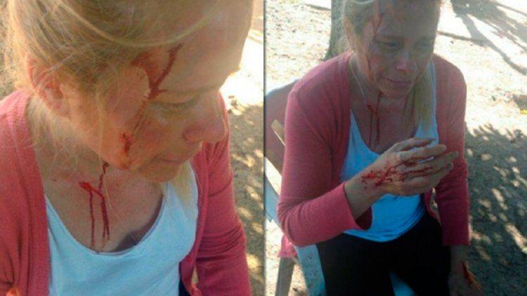 Así quedó la mujer tras la brutal agresión
