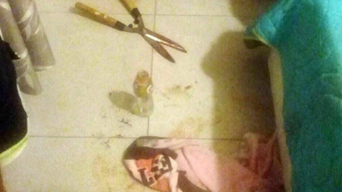 Córdoba: una joven le cortó el miembro a su amante con una tijera de podar mientras  dormía