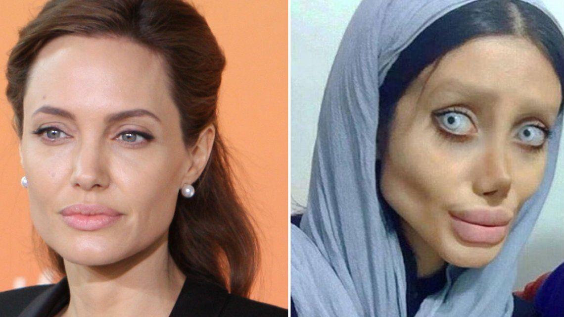 Se hizo 50 operaciones para parecerse a Angelina Jolie