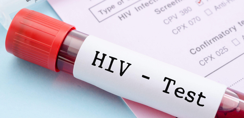 El 1º de diciembre se conmemora el Día Mundial de la Lucha contra el SIDA
