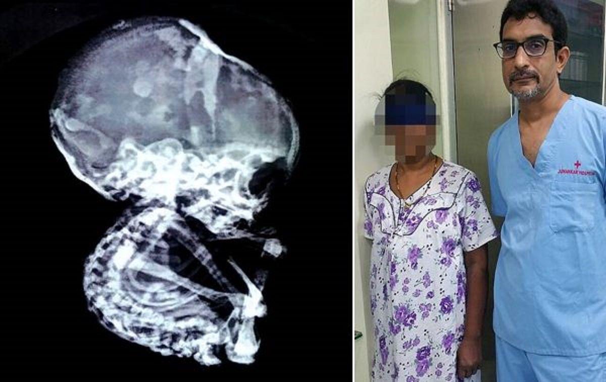 El extraño caso de la mujer que vivió con un feto petrificado durante 15 años