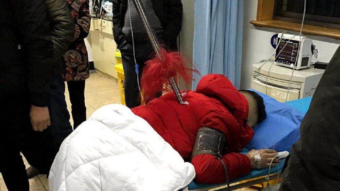 Le clavaron una lanza de casi dos metros y sobrevivió de milagro