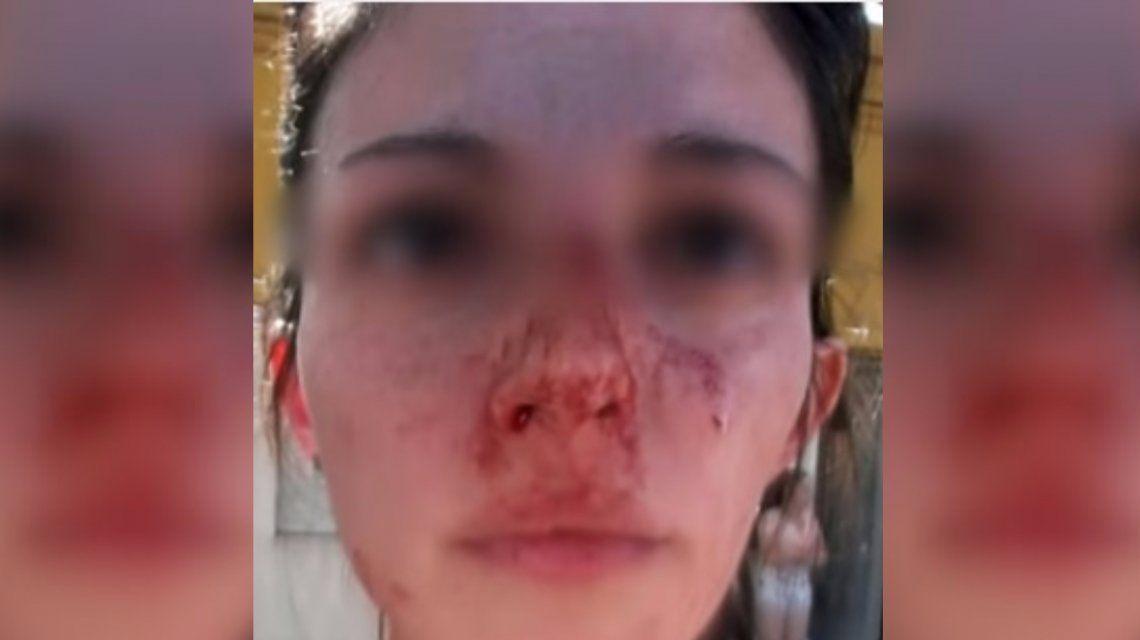 Brutal agresión a una mujer en Rosario: su ex la golpeó en la calle y delante de su hijo