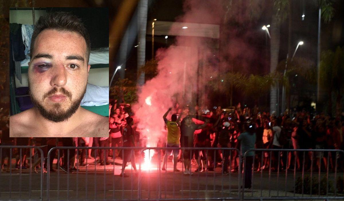 Cobarde agresión a un hincha de Independiente en Brasil: Me rompieron la nariz, el ojo, el pómulo