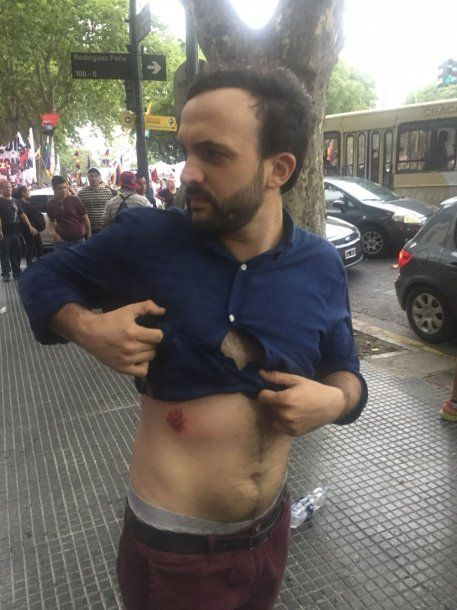 Leonardo Grosso, uno de los diputados agredidos<br>