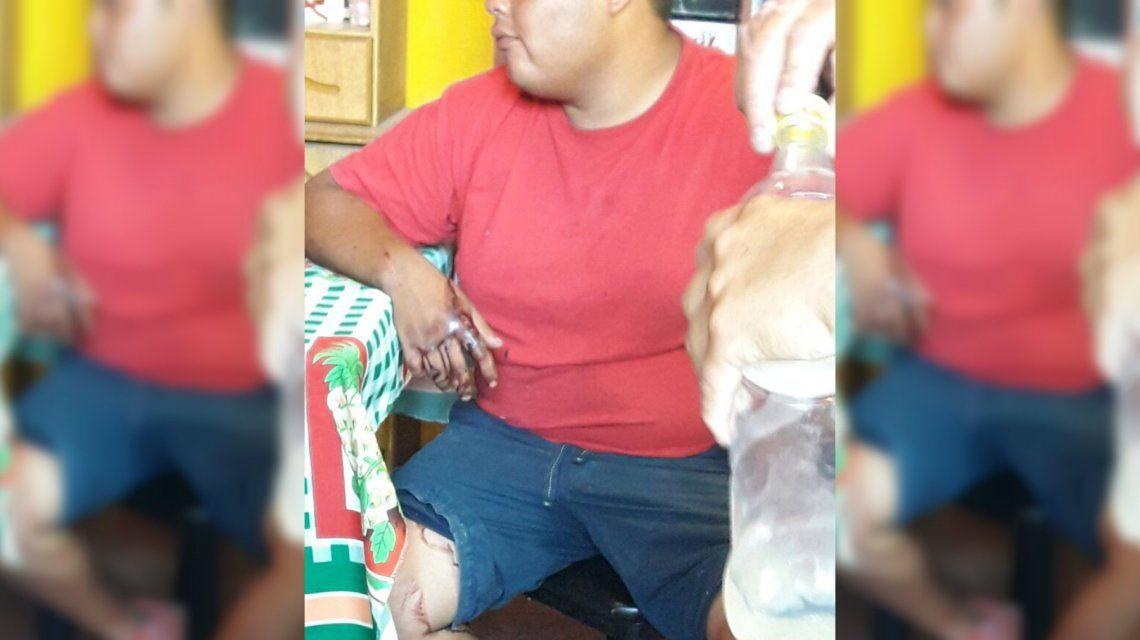 Entró a robar a la casa de un vecino y lo detuvieron por las manchas de sangre que dejó en el camino