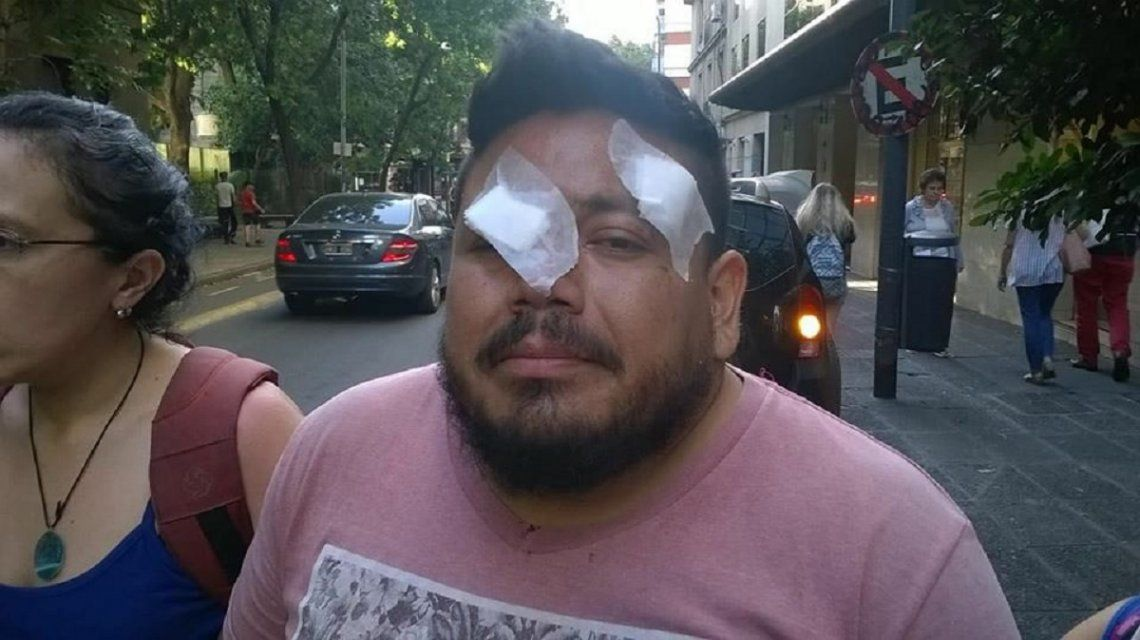 Daniel Sandoval perdió un ojo en una protesta contra la reforma previsional - Crédito: @valeriafgl