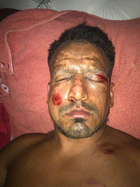 A Viatri le explotó pirotecnia en la cara