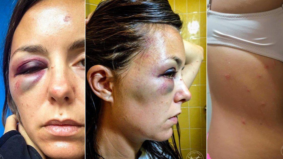 Una turista argentina fue golpeada, apuñalada y arrojada desde un precipicio en Ecuador