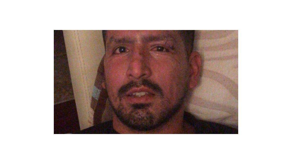 Viatri podría perder parte de la visión en un ojo por su accidente con pirotecnia