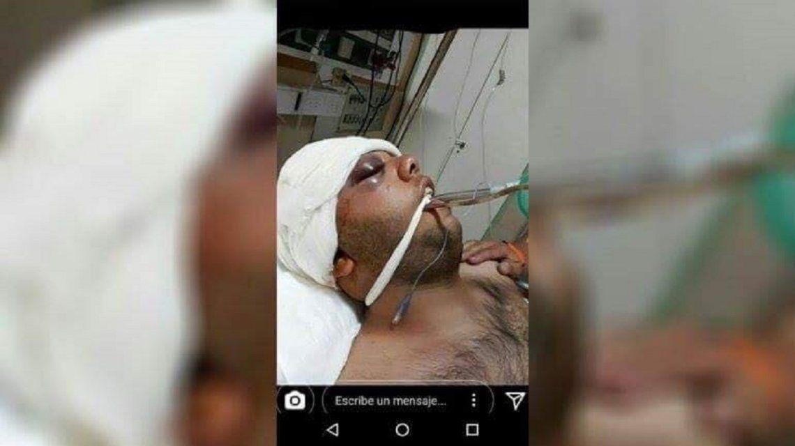 Viralizan la brutal paliza a la salida de una fiesta que dejó grave a un joven
