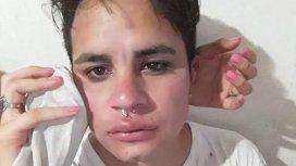 Moreno: golpearon a otro joven por ser gay e intentaron robarle