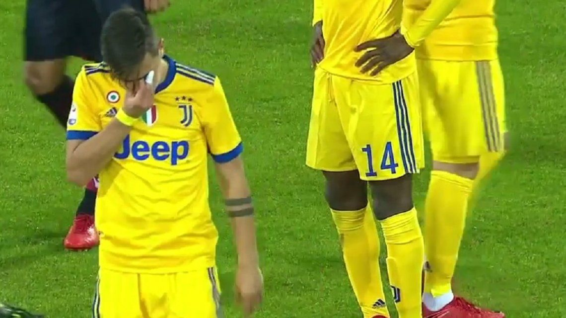 Dybala se lesionó durante el partido entre Juventus y Cagliari