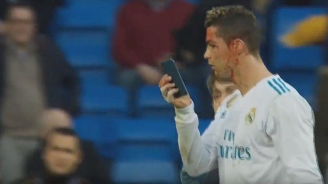 Cristiano Ronaldo se cortó la cara y pidió mirarse con un celular