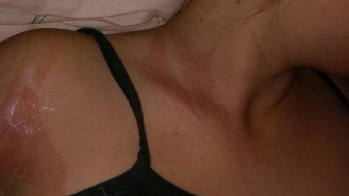 Tuvo daños en el cuello y en el brazo derecho