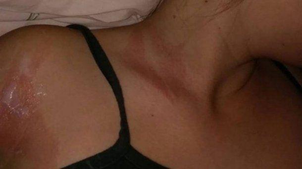 Tuvo daños en el cuello y en el brazo derecho<br>