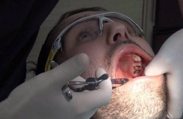 El único tratamiento posible fue el quirúrgico