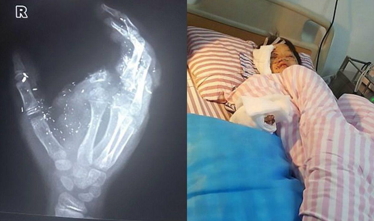 Se voló un dedo en la explosión